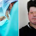Acid attacks across the UK now at 'epidemic' levels, warns experienced burns surgeon