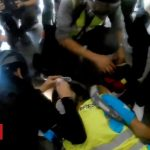 Hong Kong protests: Rubber bullet blinds journalist in one eye